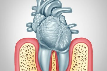 ایمپلنت برای بیماران قلبی