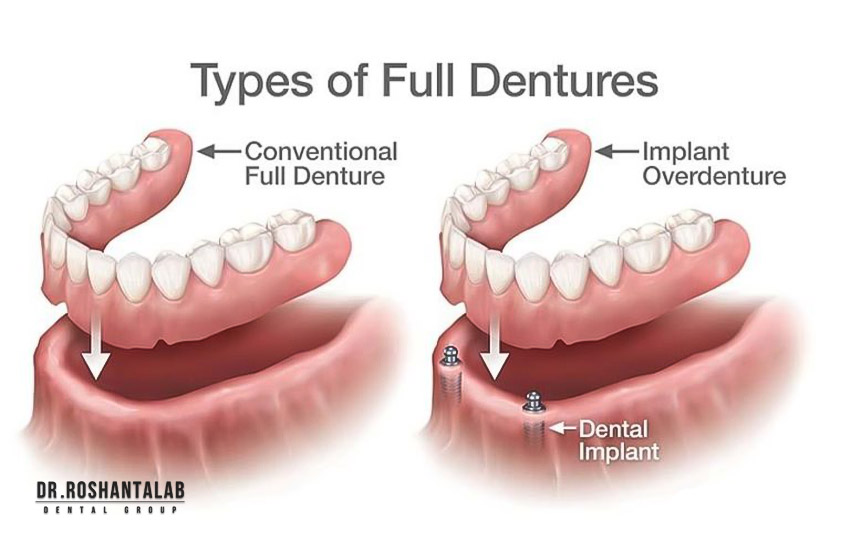 تفاوت اوردنچر با دندان مصنوعی